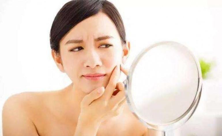 长粉刺的原因有哪些?粉刺怎么去除小妙招,独生美与你分享美容护肤新闻资讯
