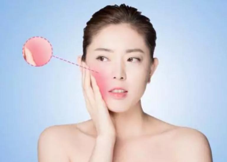 什么是面部红血丝?修复面部红血丝最好用的修复产品!独生美官网