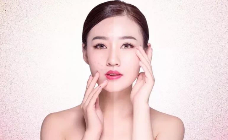 重庆独生美化妆品公司:全城招募免费祛斑独生美祛斑祛痘 独生美官网