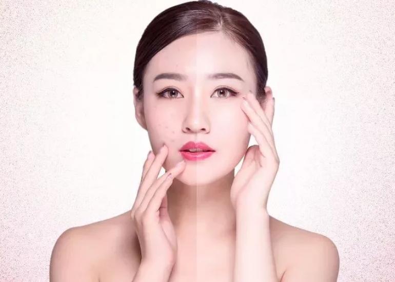 美白祛斑最有效的方法?口碑最好的祛斑护肤产品?独生美官网!