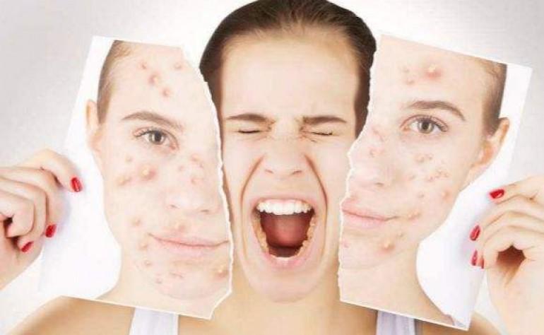 什么是激素脸?你的脸有中激素的毒吗? 美容护肤独生美官网