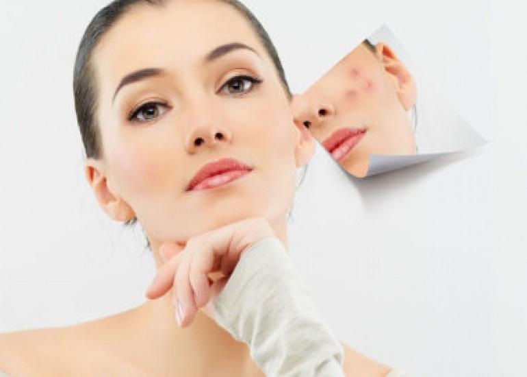 怎样快速祛痘祛痘印 独生美控油祛痘护肤品 美容院专业线独生美化妆品
