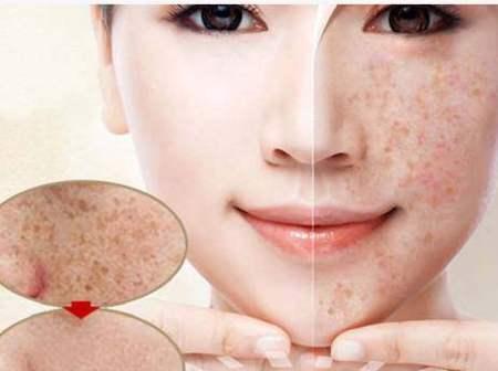黄褐斑是怎么样形成的?黄褐斑怎么去除效果好?美容护肤独生美官网