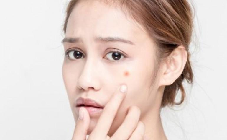 粉刺不挤自己会消除吗?粉刺痘痘怎么消除?美容护肤独生美官网