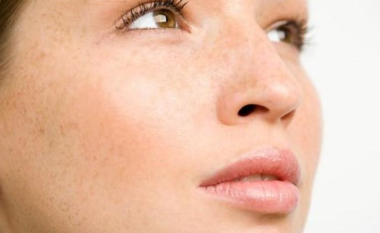 雀斑是什么原因引起的?雀斑淡化最有效的方法 雀斑怎么去除?独生美祛斑厂家排行榜