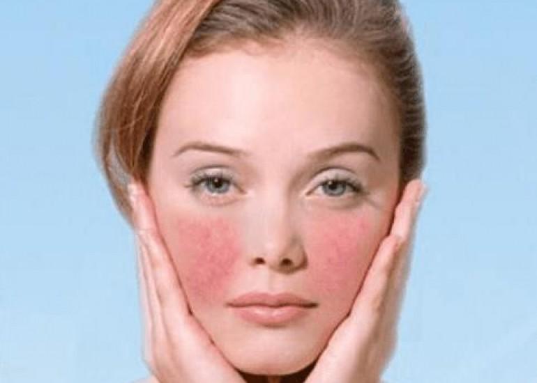 我们怎么判断自己是不是敏感肌?美容护肤独生美官网!