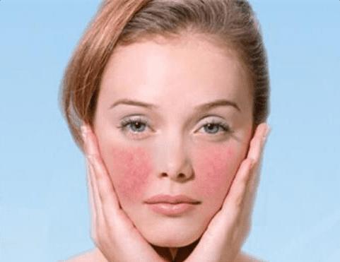 激素脸和过敏脸区别在哪儿?激素脸有哪些症状?激素脸怎么治疗修复好得快?美容护肤独生美官网
