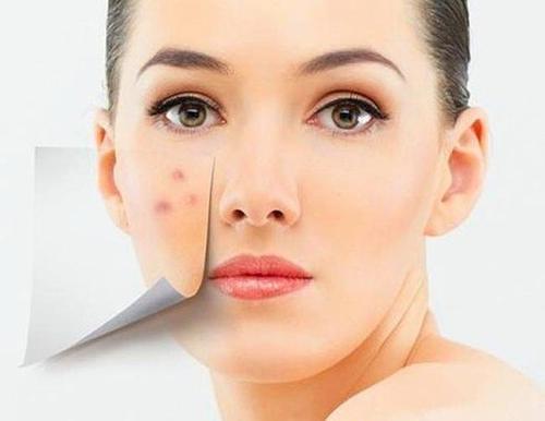 什么东西祛痘印最有效?简单快速祛痘印产品你知道吗?美容护肤新闻资讯独生美官网