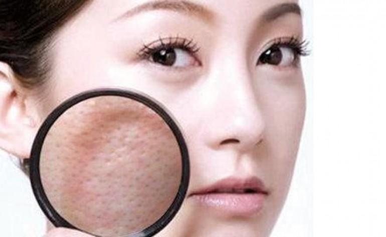 皮肤毛孔粗大怎么办?独生美教你几招避免毛孔粗大及解决毛孔粗大的美容护肤小窍门!