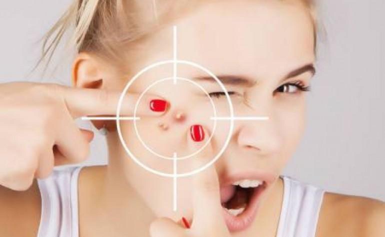 怎么快速祛痘祛痘印?独生美告诉你四个最有效祛除痘印痘坑方法!美容护肤新闻独生美官网!