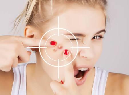 脸上长痘痘反反复复怎么办?痘痘皮肤暗示身体健康出现问题  去痘痘最好的方法 独生美控油祛痘护肤品