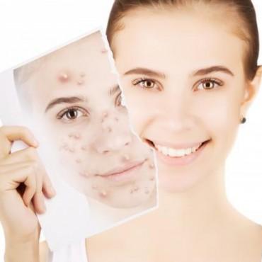 青春痘怎样治?教你几招中医治疗方法,轻松告别痘痘肌!美容护肤独生美官网!