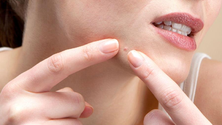 祛痘痘最快的方法 快速祛痘去痘印不留痘坑 美容护肤独生美官网