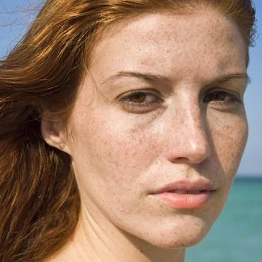 脸上长老年斑怎么去掉,去老年斑的方法都在这了,美容护肤独生美官网!