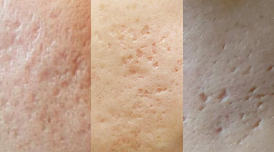 终于找到拯救痘疤痘坑的修复方法了!不看后悔!美容护肤独生美官网